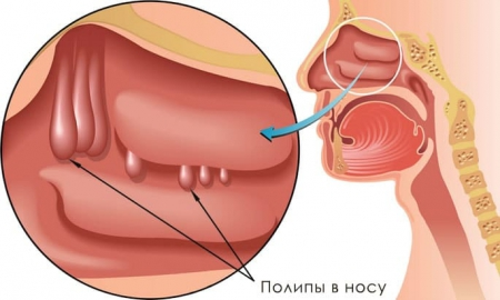 Стоимость удаления полипов в носу цена в Москве клиника Трит
